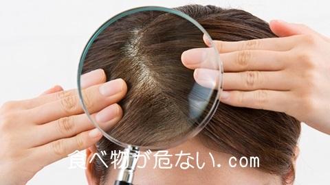 2つの油で薄毛対策!ココナッツオイルとオメガ3で薄毛改善